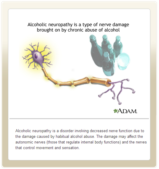 Image: Alcoholic Neuropathy