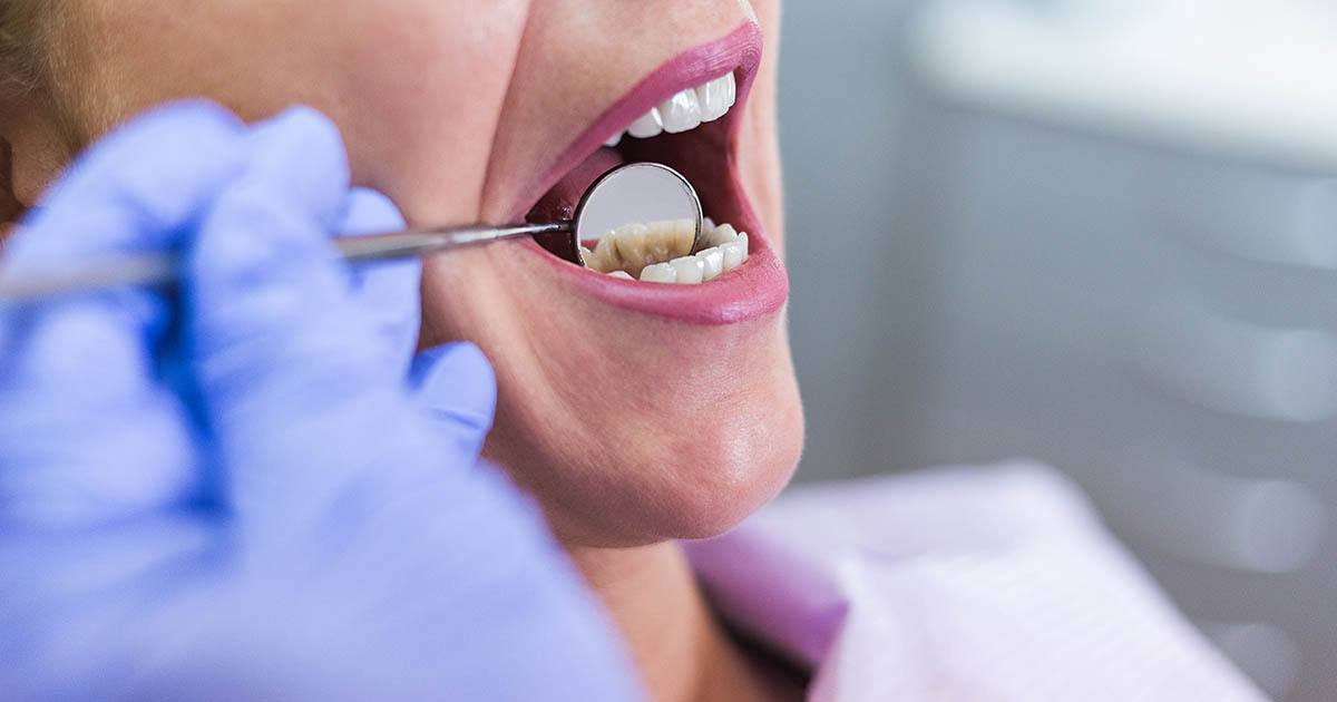 Open female mouth during oral checkup at the dentist